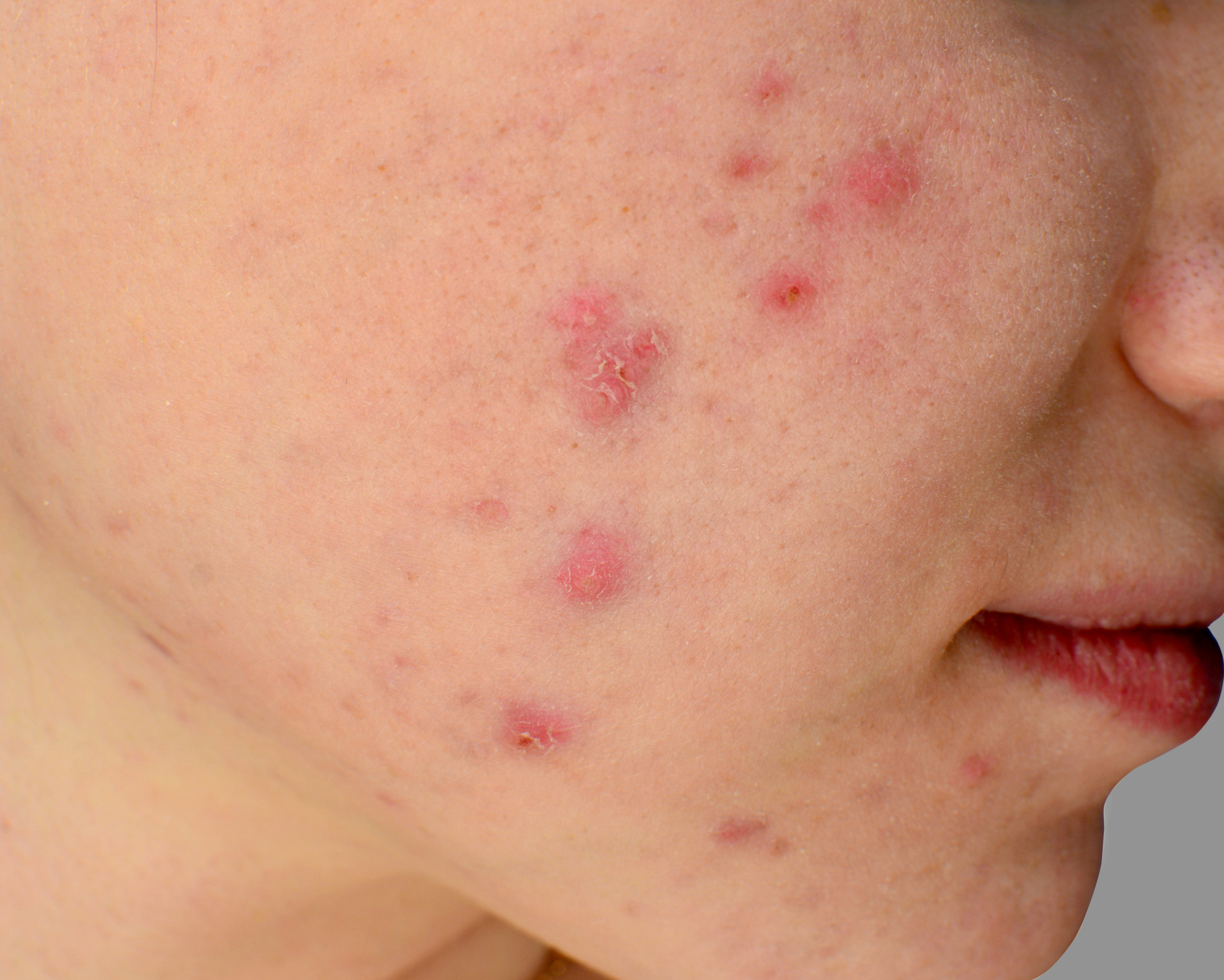 Acne is a common skin condition. At Hazelhill Family Practice we have extensive experience in treating acne.