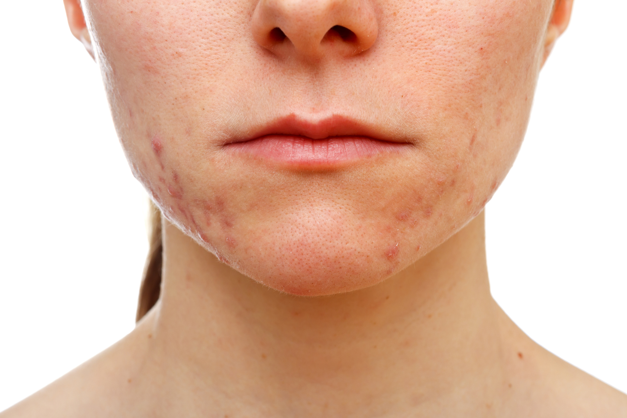 Acne treatment is provided at Hazelhill Family Practice