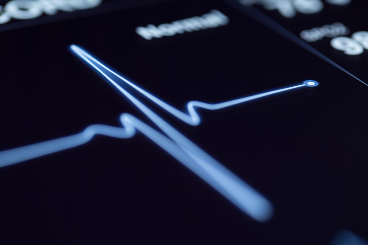 Cardiovascular Screening - GP Ballyhaunis, GP Mayo, Doctor Ballyhaunis, Doctor Mayo, GP Claremorris - Hazelhill Family Practice.jpg