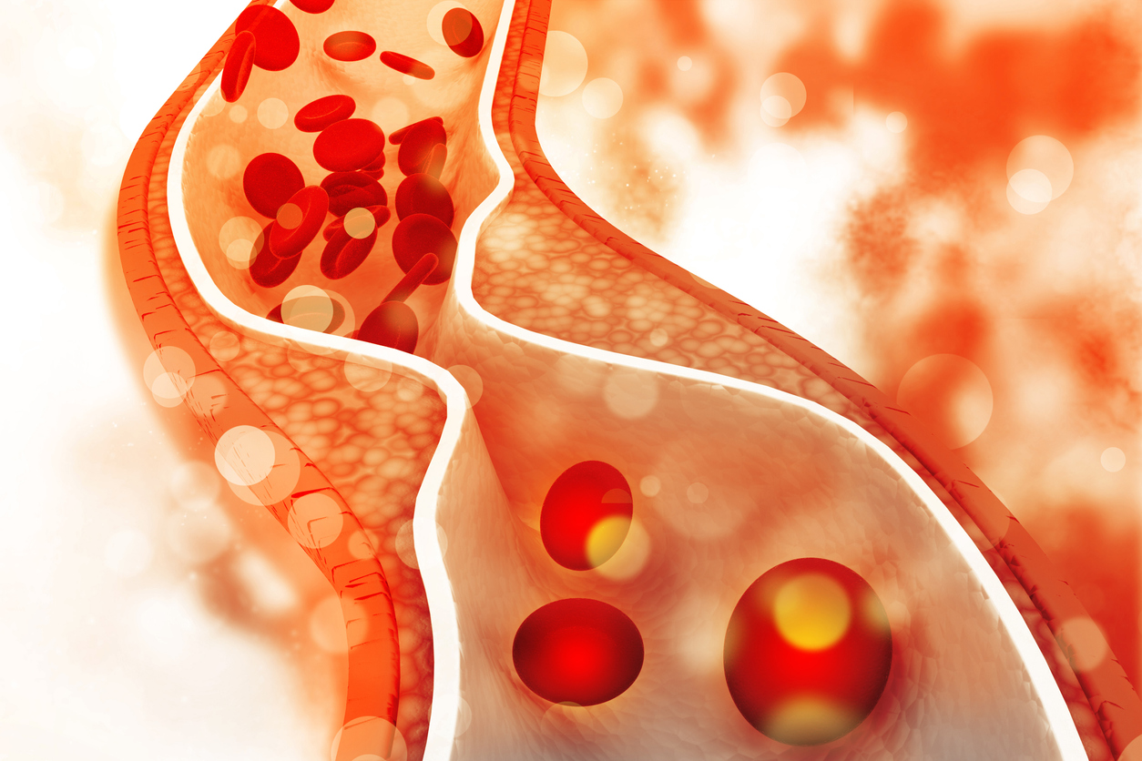 Cholesterol - Ballyhaunis Doctor, Mayo GP, Claremorris Doctor - Hazelhill Family Practice.jpg