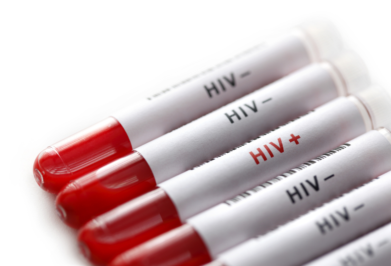 HIV tests and follow up are provided by Hazelhill Family Practice