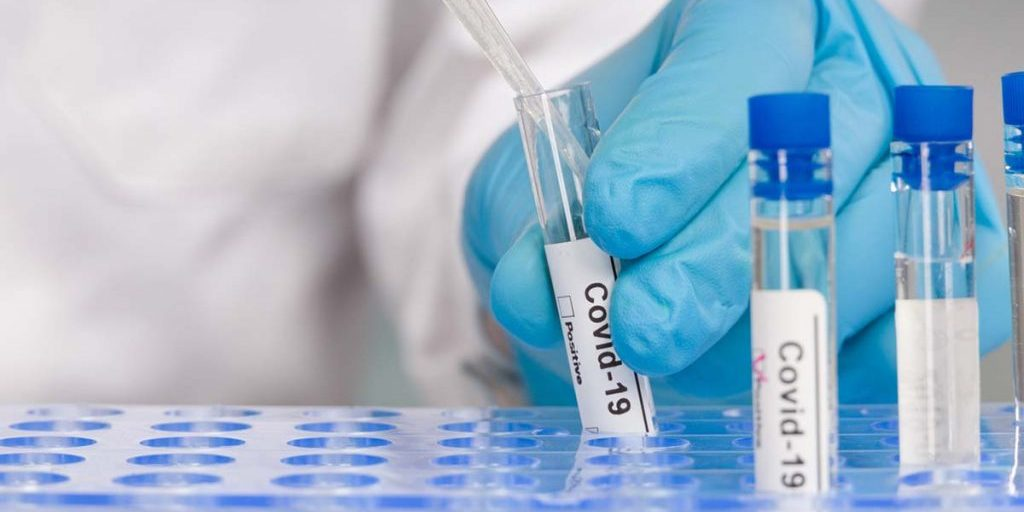 Covid-19 Antibody Testing is now available from Hazelhill Family Practice